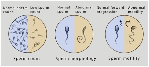 直接得到精子数量、形态、活性等多个生殖健康指标。